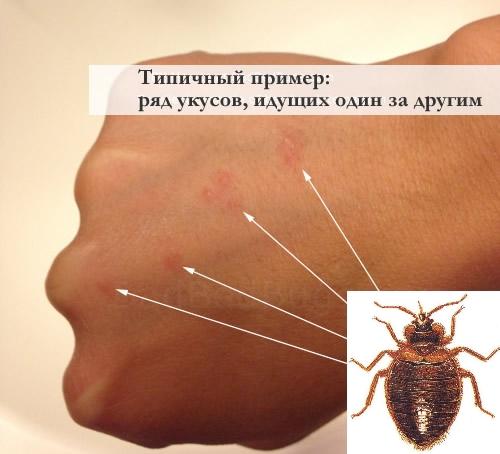 Типичные укусы клопа