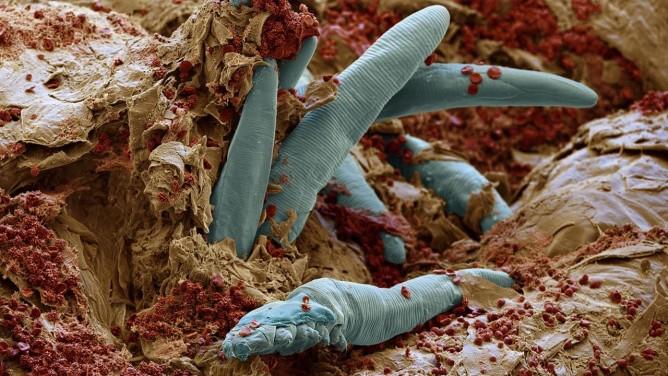 Клещи демодекс под микроскопом