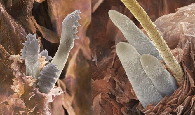 Демодекоз под микроскопом