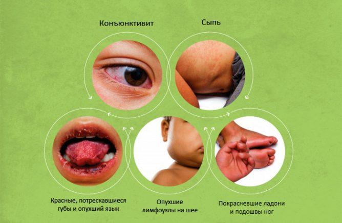Симптомы вируса Зика