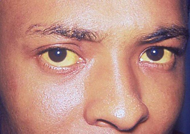Желтая лихорадка