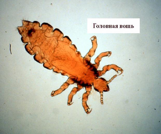 вошь под микроскопом